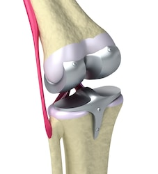 Knieprothese - MedicoHelp, zorg in het buitenland Spanje en Duitsland