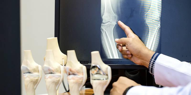 Operatie knie - MedicoHelp; begeleiding naar zorg in het buitenland